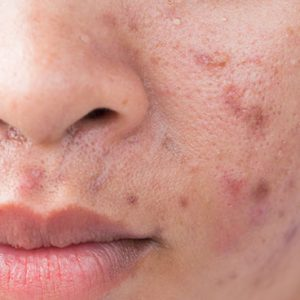 nose and mouth with acne